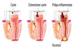 Carie-pulpite-e-ascesso-dentale