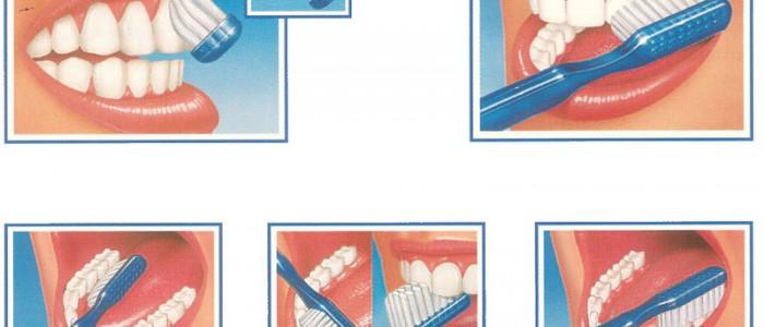 Consigli del Dentista su Come Spazzolare i Denti