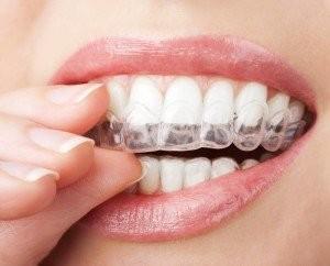 ortodonzia-invisibile-300x242