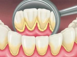 prevenzione-igiene-orale-professionale