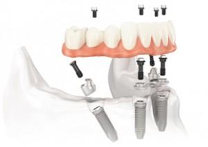 protesi-fissa-su-denti-naturali
