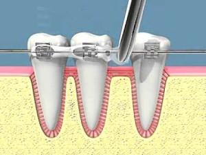 spostamento dentale